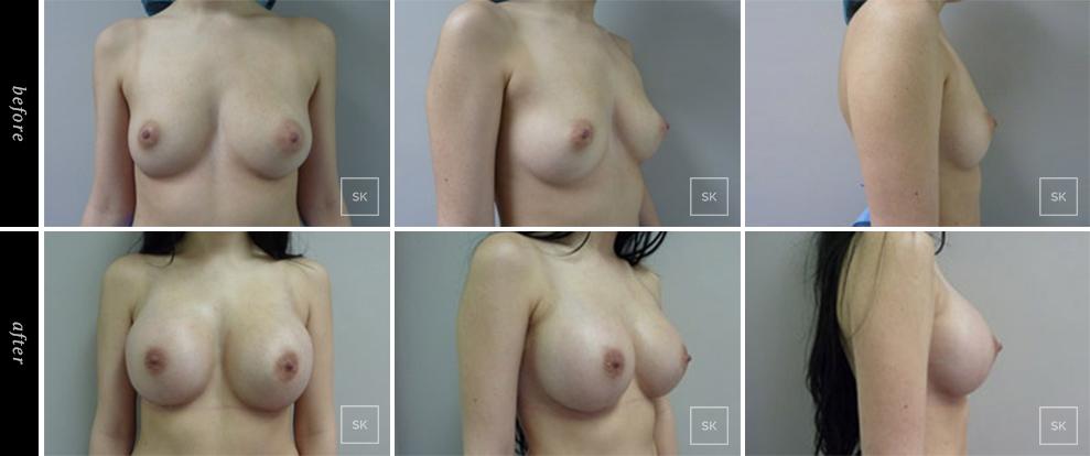 Breast Augmentation - SK Plastic Surgery