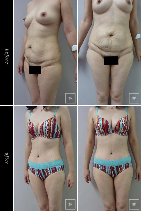 Tummy Tuck - SK Plastic Surgery