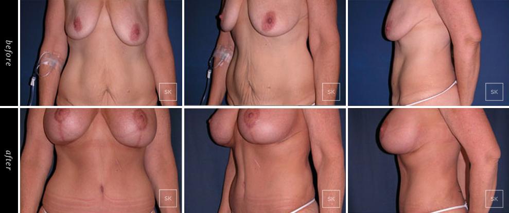 Body Lift - SK Plastic Surgery
