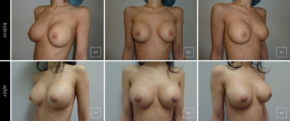 Breast Revision - SK Plastic Surgery