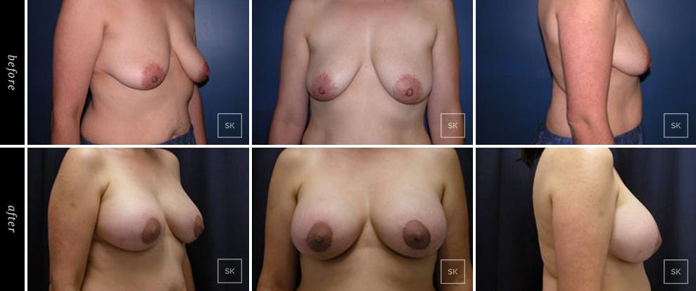 Breast Lift - SK Plastic Surgery