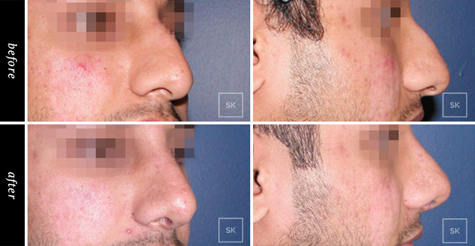 Nose Surgery - SK Plastic Surgery