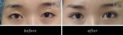 Eyelid Surgery - SK Plastic Surgery