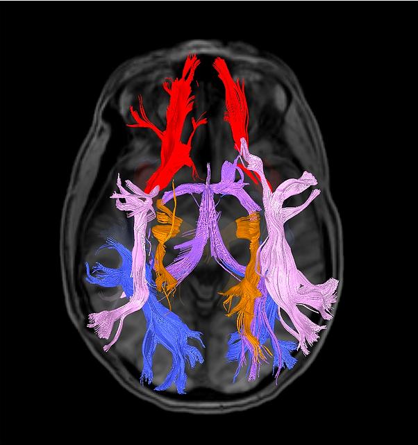 Conectividade Cerebral