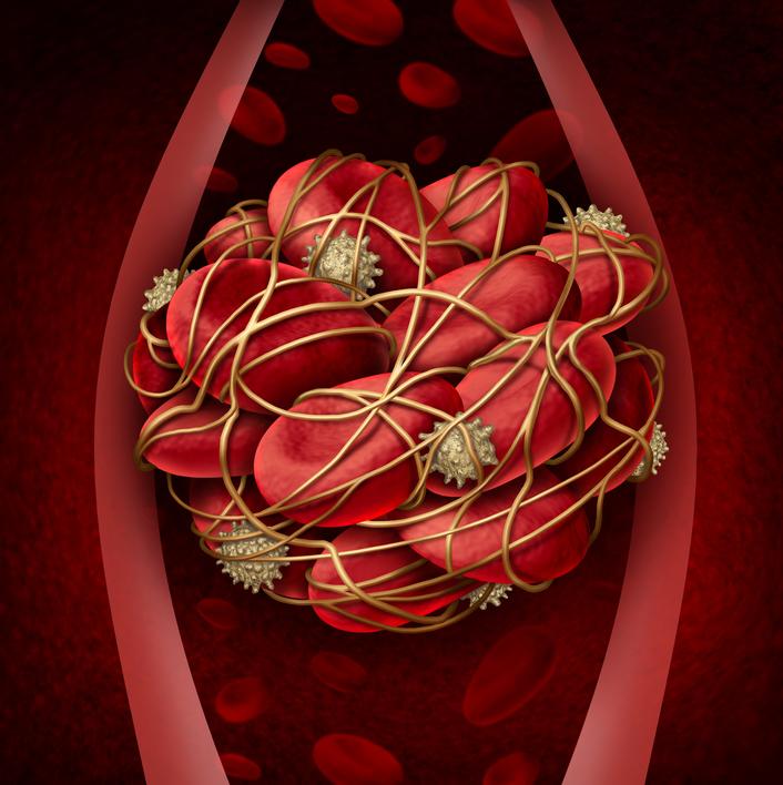 Deep Vein Thrombosis, acute DVT, chronic DVT, embolus, thrombosis, thrombectomy