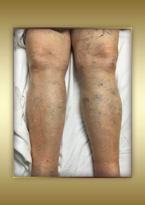 Pelvic Vein Angioplasty & Stenting (Right Leg Post-Op)