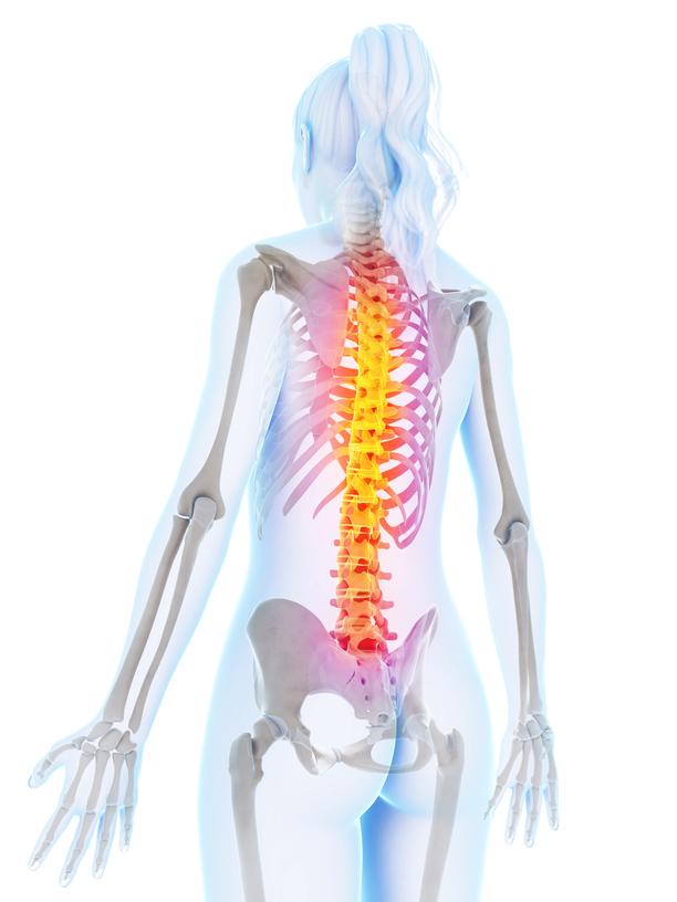 osteoporosis, op, porous bone