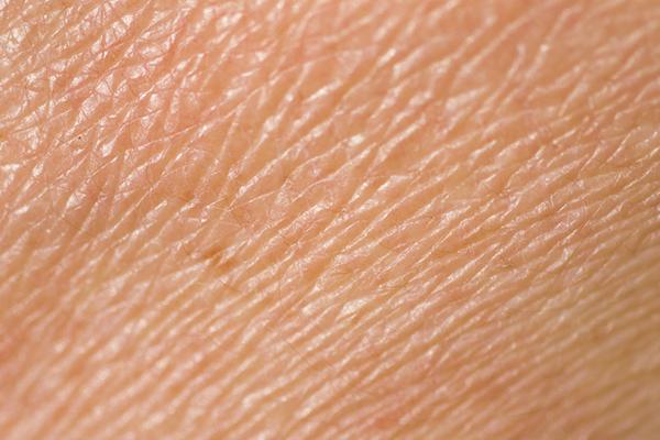 droge huid laserkliniek zwolle huidtherapie. Black Bedroom Furniture Sets. Home Design Ideas