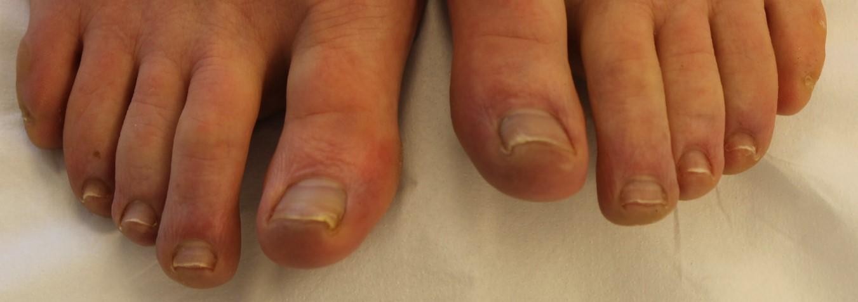 Resultaat na een Pinpointe schimmelnagel laser behandeling.