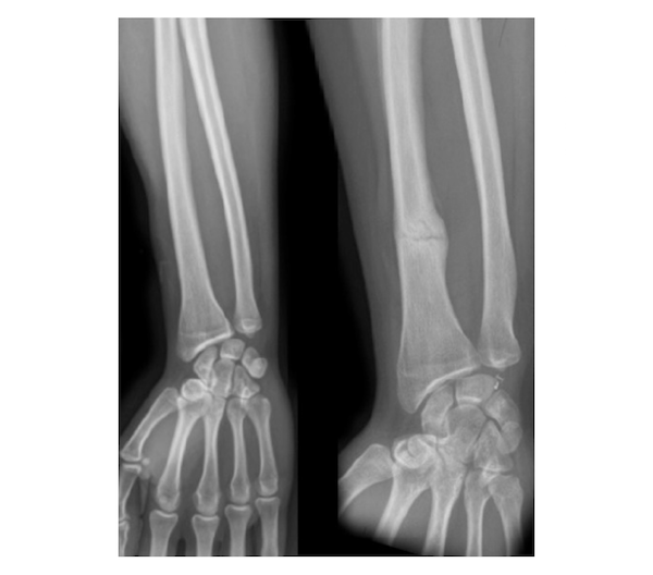 Forearm Fractures