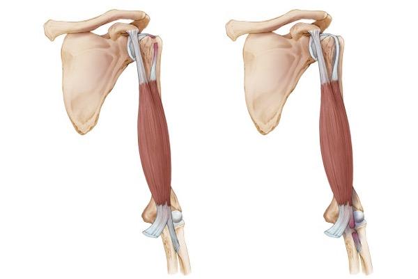 Biceps Tendon Rupture