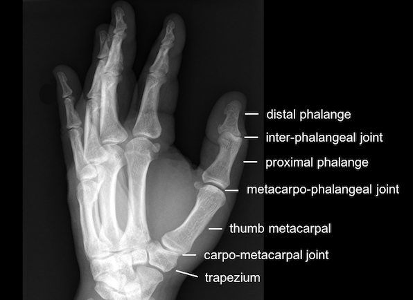 Thumb fracture