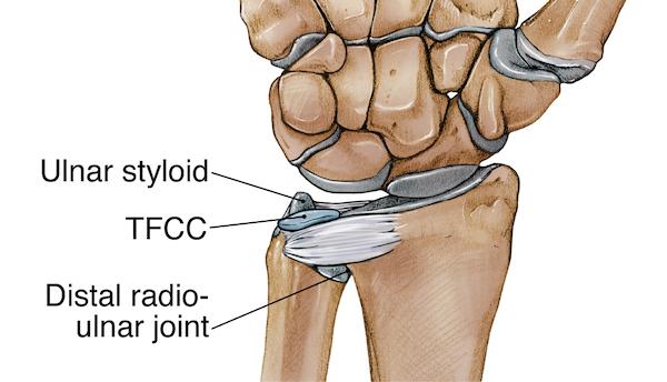 Triangular fibrocartilage complex injury