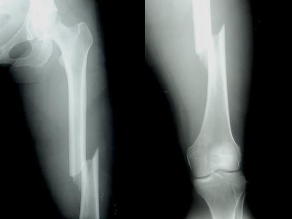 Femur shaft fracture