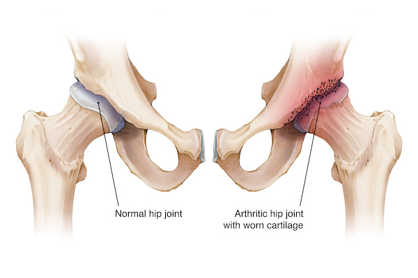 E2 80 8dillustration Comparing Healthy Left And Arthritic Hip Joint Right With Evident Erosion Of The Cartilage Around The Acetabulum And Femoral Head