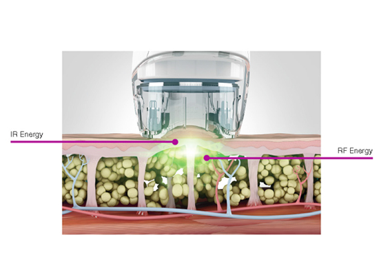 Cosmetic Skin Treatment by Syneron