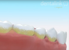 Terapia Periodontal