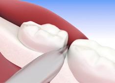 Exodoncia tercer molar