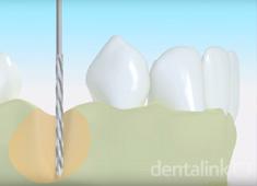 Implante oseo