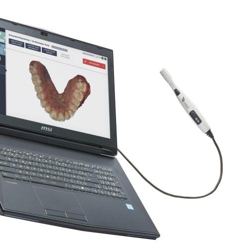 Photo of a Condor Intraoral Scanner