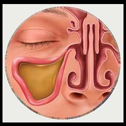 Clogged Sinuses