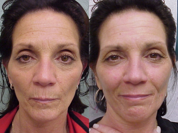 That Chemical facial peel recuperation period you