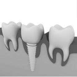 Breaking Down the Tooth Implant Process