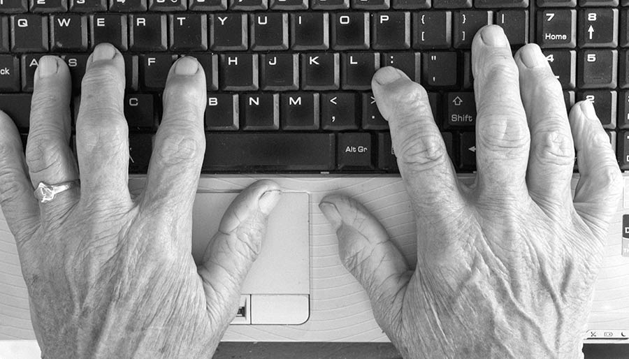 arthritic-hands-on-keyboard-image