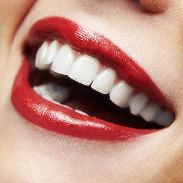 Mit Zahnaufhelling und Zahn Bleaching erreichen Sie bis zu 16 Stufen hellere Zähne in wenigen Minuten! Ganz ohne Peroxide oder sonstige Schadstoffe. Zahnaufhellung ohne Schmerzen.
