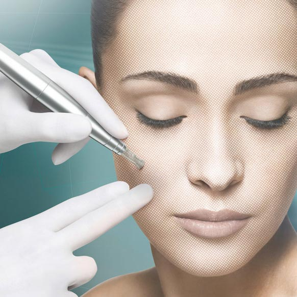 Babor MICRO NEEDLING - Wirkstoffe kommen durch MICRO NEEDLING dort an, wo sie sich am besten entfalten können. Micro needling ist eine nicht- invasive anti-aging Behandlung