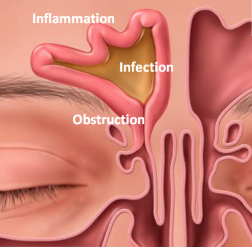 Illustration showing a sinusitis infection