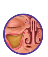 Locate - image of sinus infection