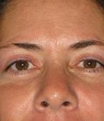 Eyelid, Before