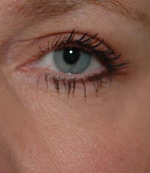 after eyelid surgery