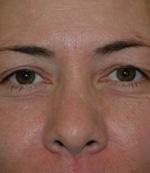before eyelid procedure