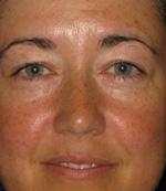 after eyelid blepharoplasty