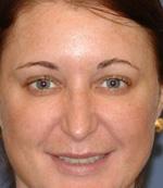 lip augmentation patient