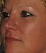 lip augmentation results