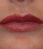 lip augmentation success