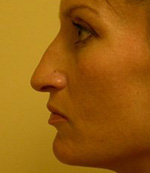 before rhinoplasty procedure