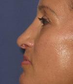 after rhinoplasty procedure