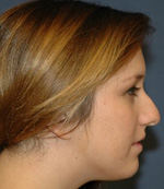 before nose reshaping procedure