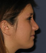 after nose reshaping