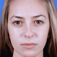 Young Woman, Rhinoplasty Before