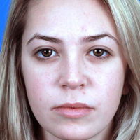 Young Woman, Rhinoplasty After