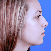 Rhinoplasty, Side View, Before