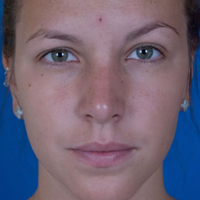 Rhinoplasty Patient, Woman, After