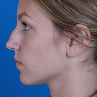 Right Profile, Rhinoplasty Before