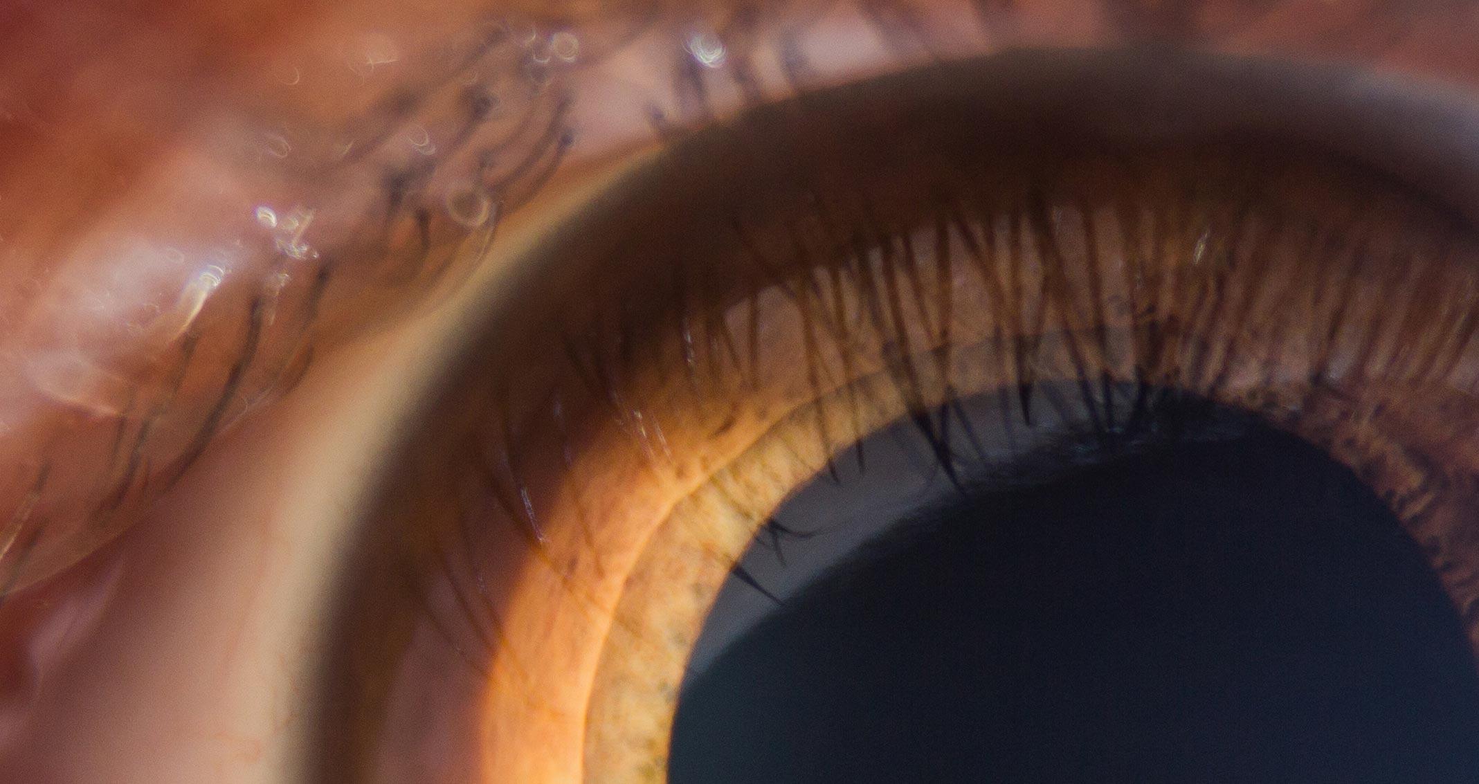 Pilcrow close up eye main