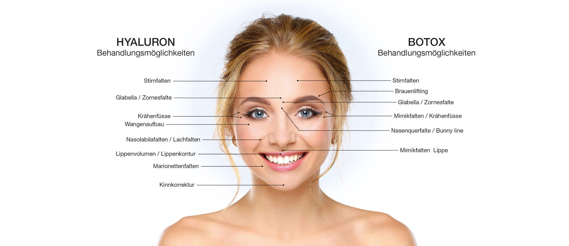 hyaluron-filler-botox
